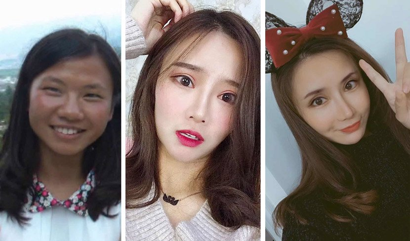 """Teenagers in China are asking for """"selfie-grade"""" plastic surgery, with the west not far behind"""