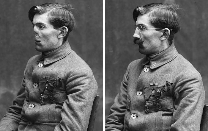 Cosmetic surgery grew in the wake of the Great War